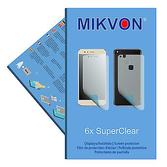 Huawei P10 lite the front / the reverse screen protector- Mikvon films SuperClear (3x FRONT / 3x BACK) (intentionally smaller than the display due to its curved surface)