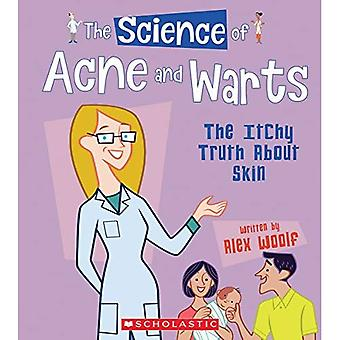 The Science of Acne and Warts (Science of the Body)