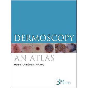 Dermoscopy by Scott W. Menzies & Kerry A. Crotty & Christian Ingvar & William H. McCarthy