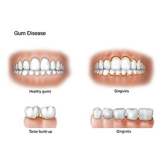 Comparison of healthy gums versus gingivitis Poster Print by TriFocal CommunicationsStocktrek Images