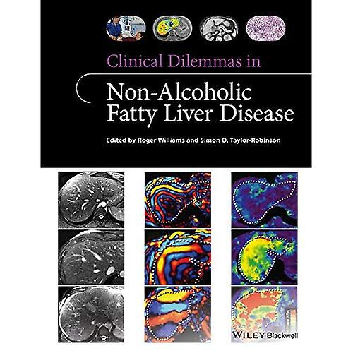 Clinical Dilemmas in Non-Alcoholic Fatty Liver Disease (Clinical Dilemmas (UK))