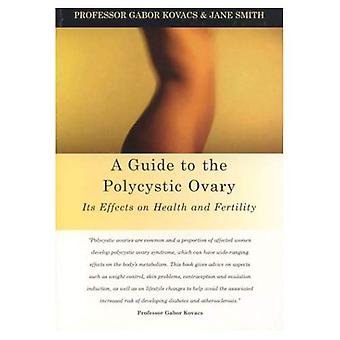 A Guide to the Polycystic Ovary : Its Effect on Health and Fertility