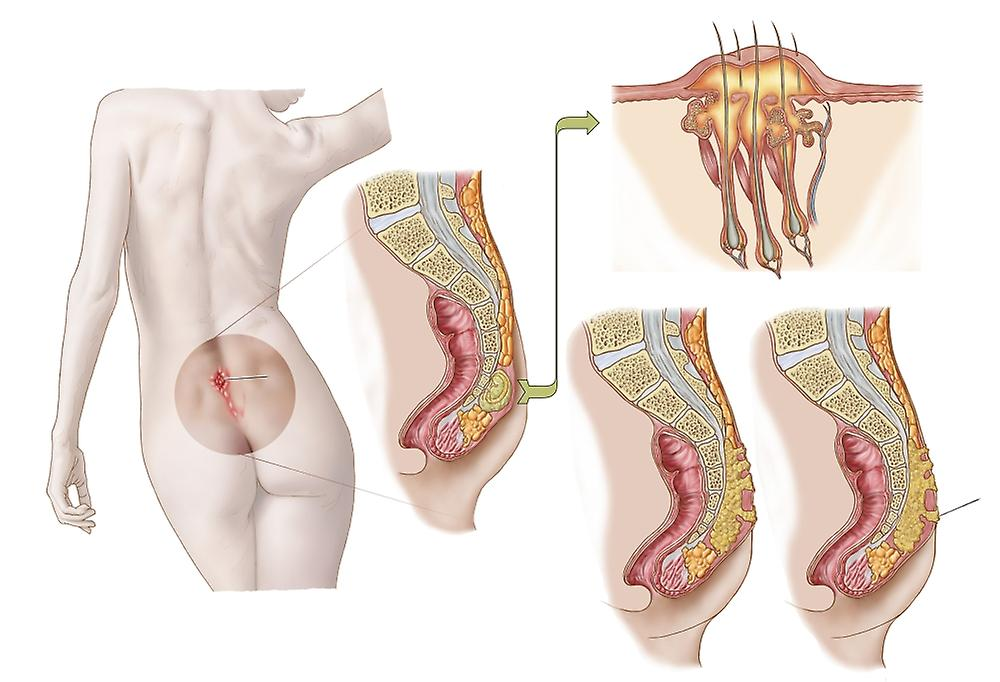 pilonidal cysts Pilonidal abscess definition pilonidal abscess refers to a cyst or an abscess found in the cleft of the buttocks the cyst is fluid-filled and it happens in the tailbone or what is called as the coccyx.