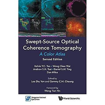 Swept-Source Optical Coherence Tomography: A Color Atlas: Second Edition