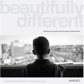 Beautifully Different: Autism: Viewing the World Through a Different Lens
